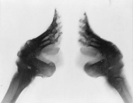 769px-Bound_feet_(X-ray) 1890-1923